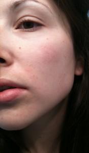My skin in the morning